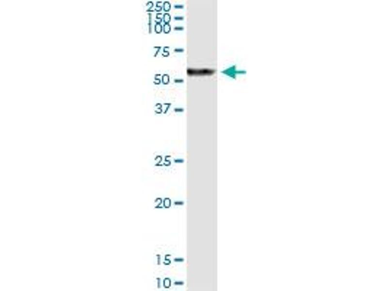 Immunoprecipitation (IP) image for anti-Preferentially Expressed Antigen in Melanoma (PRAME) (AA 1-509) antibody (ABIN949123)