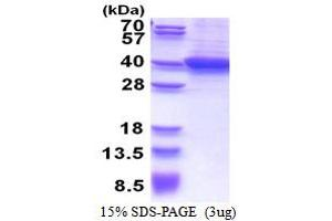 Image no. 1 for Retinaldehyde Binding Protein 1 (RLBP1) (AA 1-317) protein (His tag) (ABIN5853497)