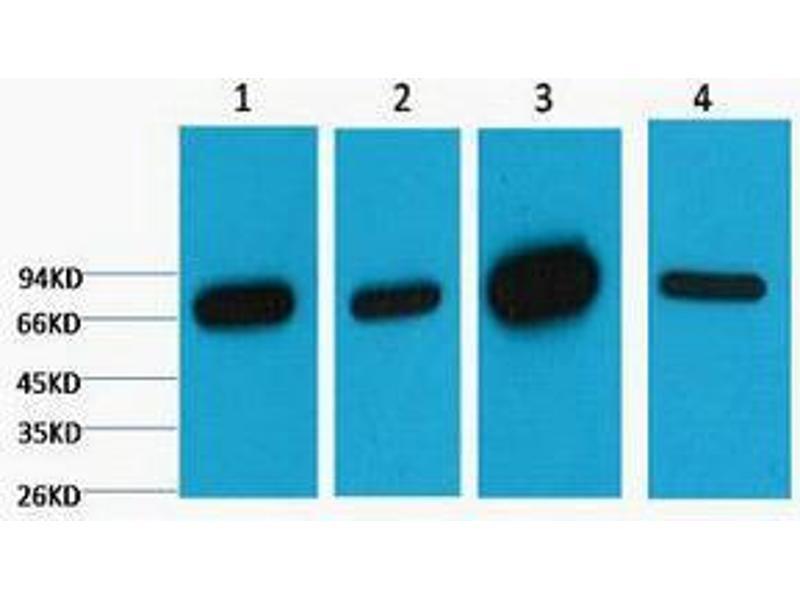 Western Blotting (WB) image for anti-Lamin B1 antibody (LMNB1) (ABIN3181108)