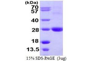 Image no. 1 for ADP-Ribosylation Factor-Like 11 (ARL11) (AA 1-196) protein (His tag) (ABIN667499)