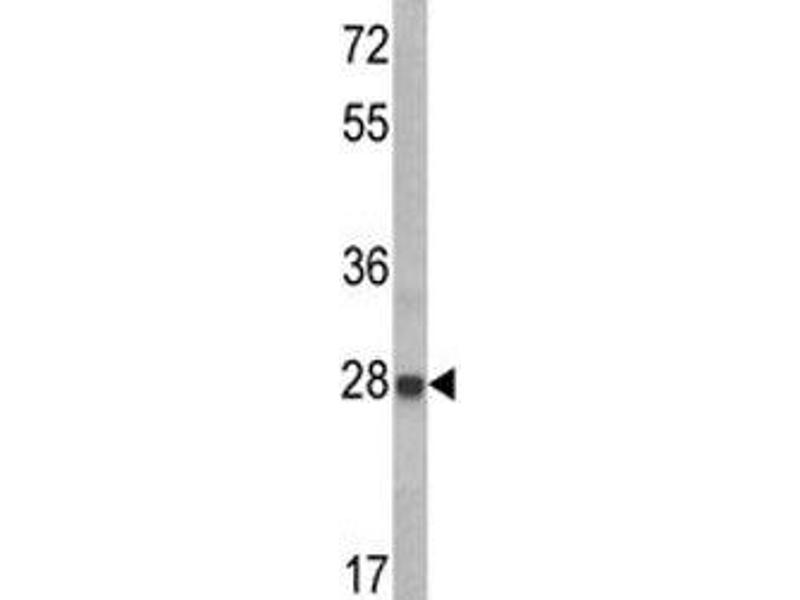 Western Blotting (WB) image for anti-IGFBP6 antibody (Insulin-Like Growth Factor Binding Protein 6) (AA 176-200) (ABIN3031358)