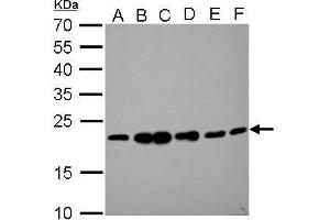 Image no. 2 for anti-Receptor (G Protein-Coupled) Activity Modifying Protein 2 (RAMP2) (C-Term) antibody (ABIN2856615)