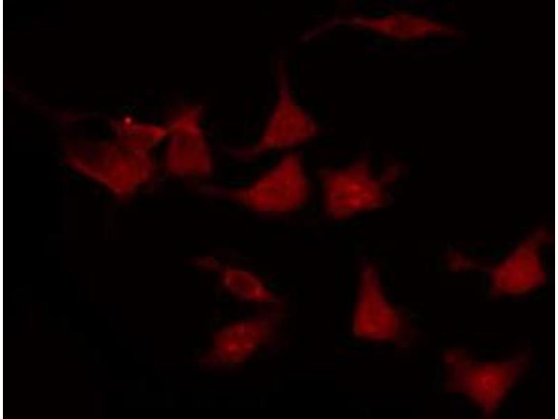 Immunofluorescence (fixed cells) (IF/ICC) image for anti-V-Erb-B2 erythroblastic Leukemia Viral Oncogene Homolog 2, Neuro/glioblastoma Derived Oncogene Homolog (Avian) (ERBB2) (pTyr877) antibody (ABIN6256054)