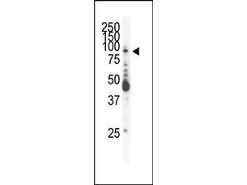 Western Blotting (WB) image for anti-EPH Receptor B2 antibody (EPHB2) (AA 103-133) (ABIN391919)