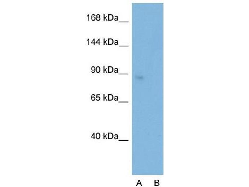 Western Blotting (WB) image for anti-SATB Homeobox 1 (SATB1) (C-Term) antibody (ABIN2780457)