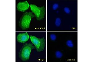 Image no. 2 for anti-Acetylcholinesterase (AChE) (C-Term) antibody (ABIN185357)