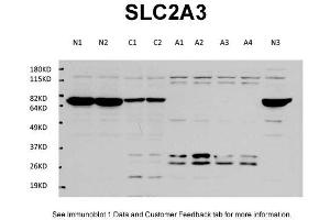 Image no. 1 for anti-Solute Carrier Family 2 (Facilitated Glucose Transporter), Member 3 (SLC2A3) (Middle Region) antibody (ABIN2789461)