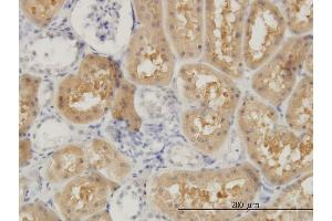 Image no. 1 for anti-Oculocerebrorenal Syndrome of Lowe (OCRL) (AA 146-239) antibody (ABIN518503)