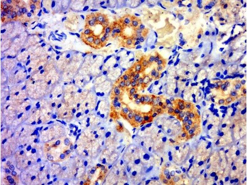 Immunohistochemistry (Paraffin-embedded Sections) (IHC (p)) image for anti-Thioredoxin Domain Containing 11 (TXNDC11) antibody (ABIN1385867)