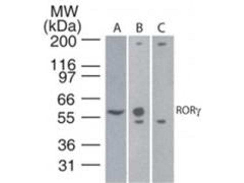 Western Blotting (WB) image for anti-RAR-Related Orphan Receptor C (RORC) (AA 1-50), (N-Term) antibody (ABIN567938)
