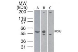 Western Blotting (WB) image for anti-RAR-Related Orphan Receptor C (RORC) (AA 1-50), (N-Term) antibody (ABIN567938)