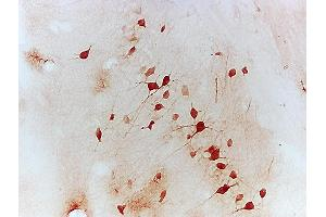 Immunohistochemistry (IHC) image for anti-Nuclear Factor of Activated T-Cells, Cytoplasmic, Calcineurin-Dependent 1 (NFATC1) (AA 660-710) antibody (ABIN686257)