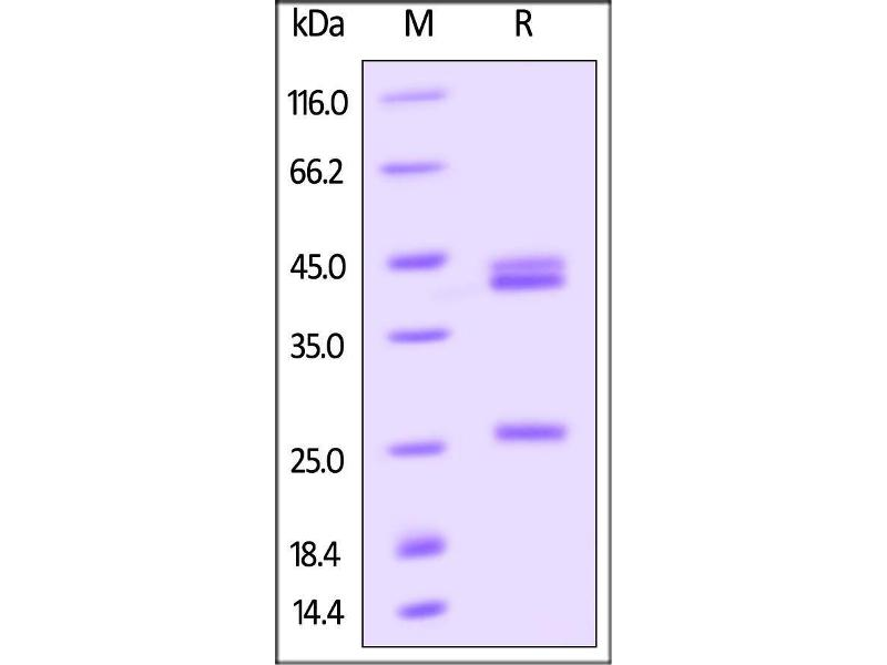 SDS-PAGE (SDS) image for IL12A & IL27B (AA 20-189) (Active) protein (AVI tag,Biotin,His tag) (ABIN4949030)