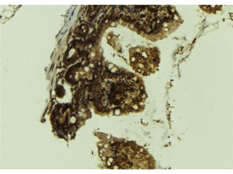 Immunohistochemistry (IHC) image for anti-Lysine (K)-Specific Demethylase 1A (KDM1A) antibody (ABIN6262764)