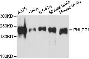 Image no. 1 for anti-PH Domain and Leucine Rich Repeat Protein Phosphatase 1 (PHLPP1) antibody (ABIN6571995)