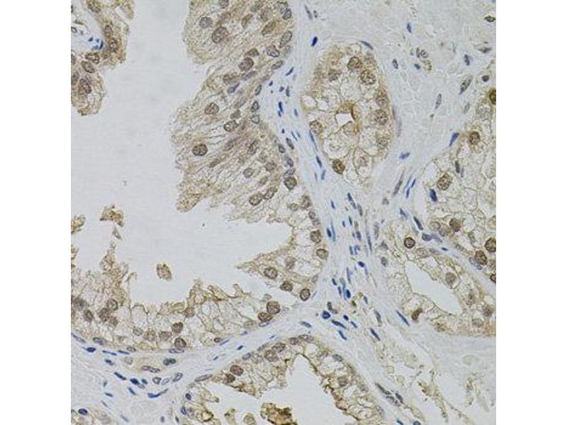 Immunohistochemistry (IHC) image for anti-Mitogen-Activated Protein Kinase 1 (MAPK1) (N-Term) antibody (ABIN1873622)