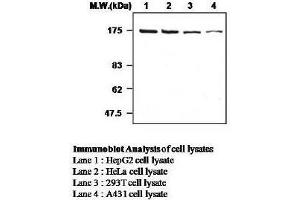 Western Blotting (WB) image for anti-ROCK2 antibody (rho-Associated, Coiled-Coil Containing Protein Kinase 2) (ABIN615037)