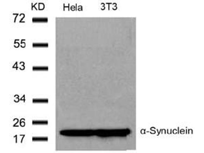 image for anti-SNCA antibody (Synuclein, alpha) (Tyr136) (ABIN319340)