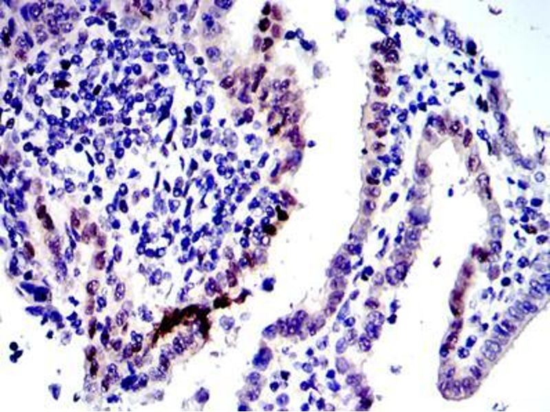 Immunohistochemistry (IHC) image for anti-C-JUN antibody (Jun Proto-Oncogene) (ABIN968994)