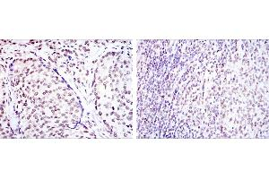 Immunohistochemistry (IHC) image for anti-cAMP Responsive Element Binding Protein 1 (CREB1) antibody (ABIN969061)