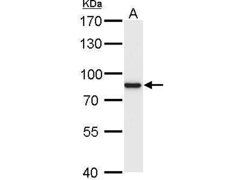 Western Blotting (WB) image for anti-RPS6KA1 antibody (Ribosomal Protein S6 Kinase, 90kDa, Polypeptide 1) (Center) (ABIN2856202)
