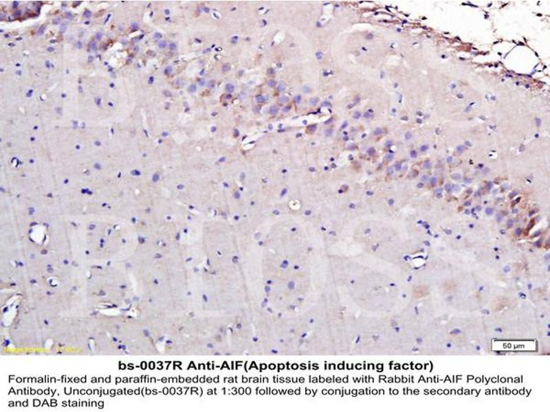 Immunohistochemistry (IHC) image for anti-AIFM1 antibody (Apoptosis-Inducing Factor, Mitochondrion-Associated, 1) (AA 130-180) (ABIN724010)
