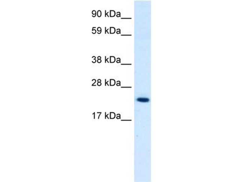 Western Blotting (WB) image for anti-High Mobility Group Box 3 (HMGB3) (C-Term) antibody (ABIN183219)
