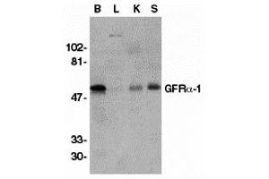 Image no. 1 for anti-GDNF Family Receptor alpha 1 (GFRA1) (Middle Region) antibody (ABIN1030937)