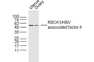 Image no. 1 for anti-RanBP-Type and C3HC4-Type Zinc Finger Containing 1 (RBCK1) (AA 300-330) antibody (ABIN4913528)