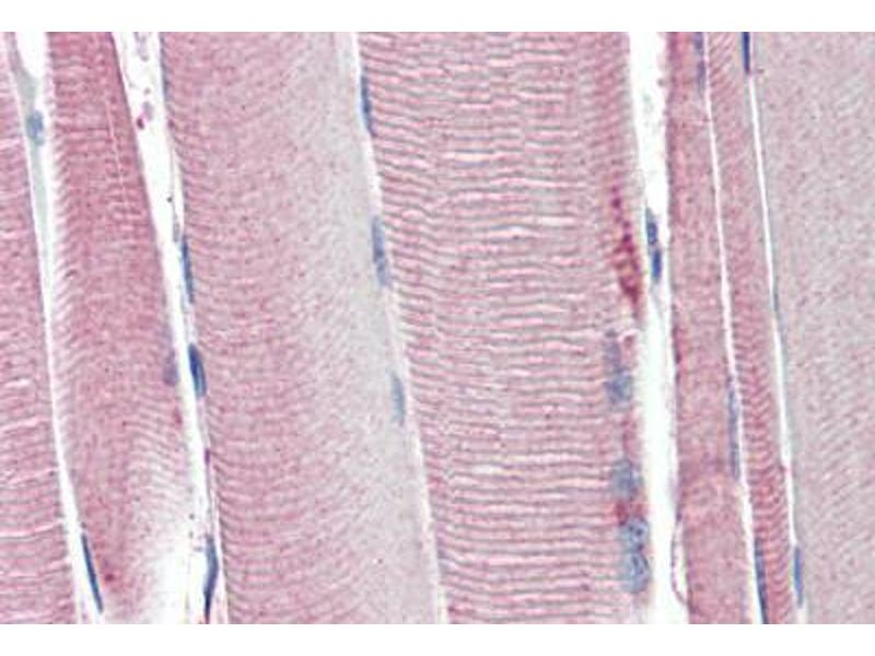 Immunohistochemistry (Paraffin-embedded Sections) (IHC (p)) image for anti-Uncoupling Protein 2 (Mitochondrial, Proton Carrier) (UCP2) (AA 101-113) antibody (ABIN461943)