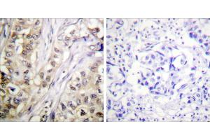 Immunohistochemistry (IHC) image for anti-BIRC5 antibody (Baculoviral IAP Repeat-Containing 5) (Thr117) (ABIN2163020)