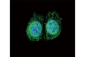 Image no. 7 for anti-B-Cell CLL/lymphoma 2 (BCL2) (AA 75-110) antibody (ABIN3030102)