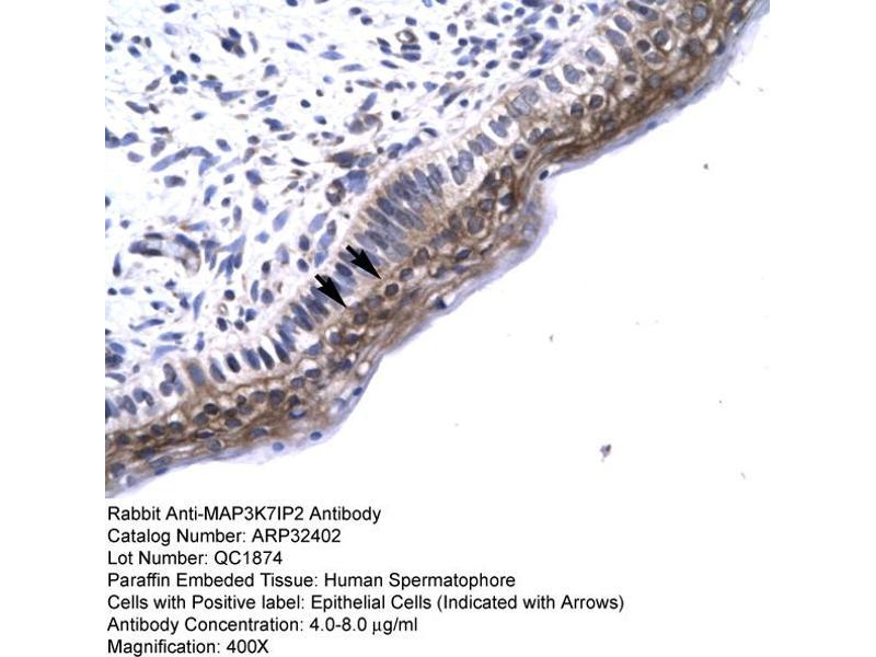 Immunohistochemistry (IHC) image for anti-TGF-beta Activated Kinase 1/MAP3K7 Binding Protein 2 (TAB2) (N-Term) antibody (ABIN2779619)