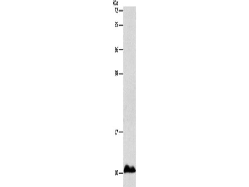 Western Blotting (WB) image for anti-Apolipoprotein C-I (APOC1) antibody (ABIN2429211)