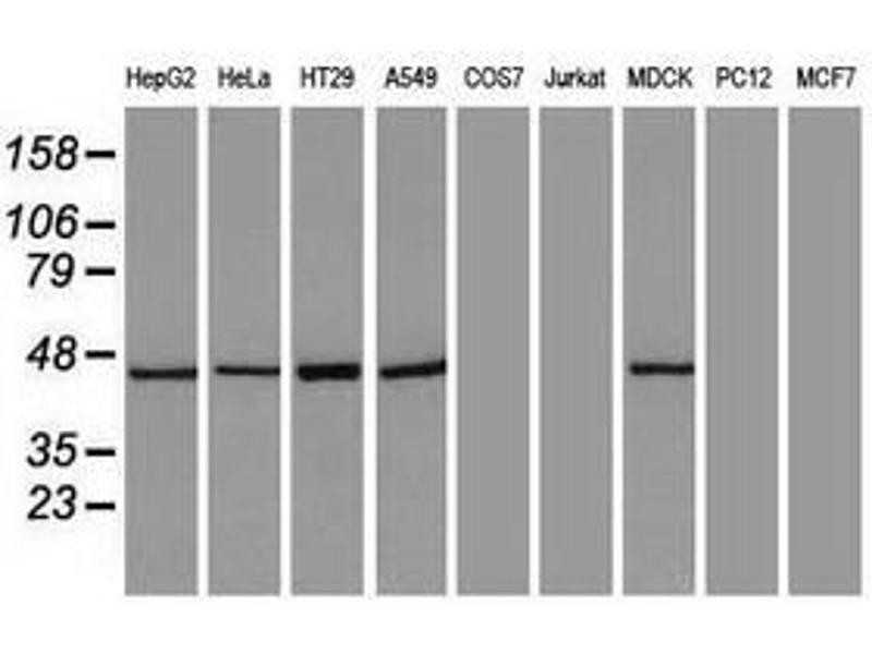 image for anti-Keratin 18 (KRT18) (AA 69-372) antibody (ABIN1491639)