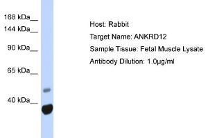 Image no. 1 for anti-Ankyrin Repeat Domain 12 (ANKRD12) (N-Term) antibody (ABIN2777997)