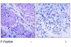 Immunohistochemistry (Paraffin-embedded Sections) (IHC (p)) image for anti-PDPK1 antibody (3-phosphoinositide Dependent Protein Kinase-1) (pSer241) (ABIN4344570)