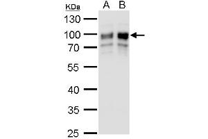 Western Blotting (WB) image for anti-Golgi Membrane Protein 1 (GOLM1) (C-Term) antibody (ABIN2856522)