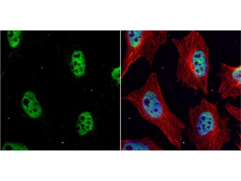 Immunofluorescence (IF) image for anti-CHEK1 antibody (Checkpoint Kinase 1) (Internal Region) (ABIN2857050)