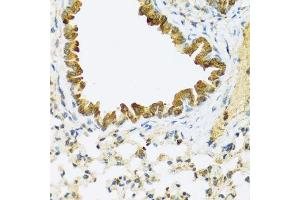 Image no. 1 for anti-Family with Sequence Similarity 20, Member A (FAM20A) antibody (ABIN6140455)