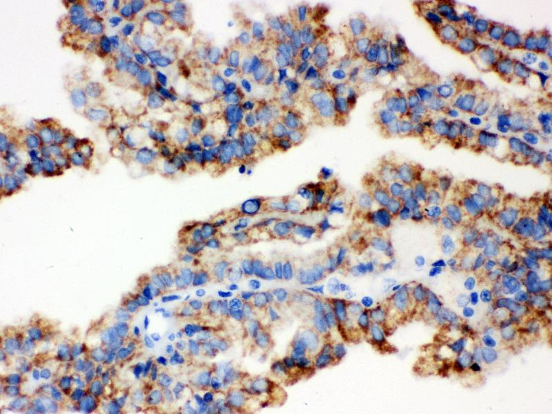 Image no. 1 for anti-Aldehyde Dehydrogenase 2 Family (Mitochondrial) (ALDH2) (AA 18-48), (N-Term) antibody (ABIN3043782)