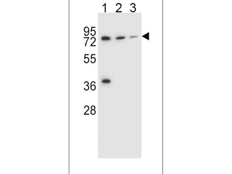 Western Blotting (WB) image for anti-UDP Glucuronosyltransferase 2 Family, Polypeptide B15 (UGT2B15) (AA 156-185), (Center) antibody (ABIN656309)