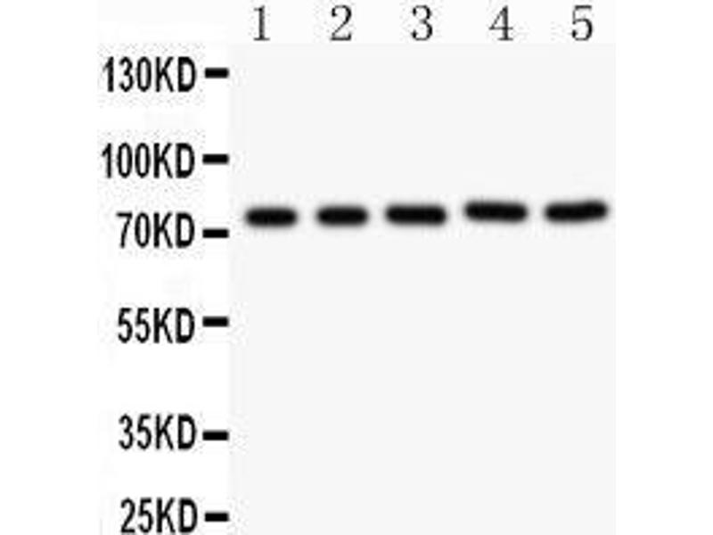 Western Blotting (WB) image for anti-Receptor (TNFRSF)-Interacting serine-threonine Kinase 1 (RIPK1) (AA 316-671) antibody (ABIN3042480)