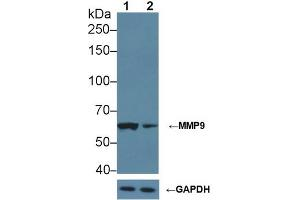 Image no. 7 for anti-Matrix Metallopeptidase 9 (Gelatinase B, 92kDa Gelatinase, 92kDa Type IV Collagenase) (MMP9) (AA 226-391) antibody (ABIN1078311)