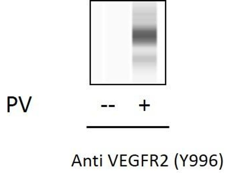 Kinase insert Domain Receptor (A Type III Receptor tyrosine Kinase) (KDR) ELISA Kit (3)