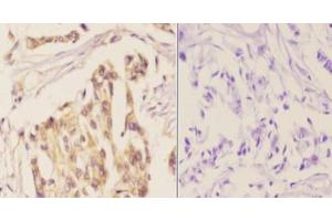 Immunohistochemistry (Paraffin-embedded Sections) (IHC (p)) image for anti-NFKBIB antibody (Nuclear Factor of kappa Light Polypeptide Gene Enhancer in B-Cells Inhibitor, beta) (pSer23) (ABIN408419)