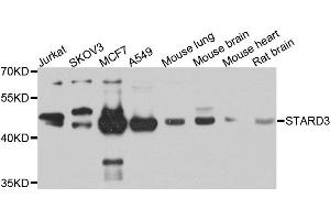 Western Blotting (WB) image for anti-StAR-Related Lipid Transfer (START) Domain Containing 3 (STARD3) antibody (ABIN2737597)