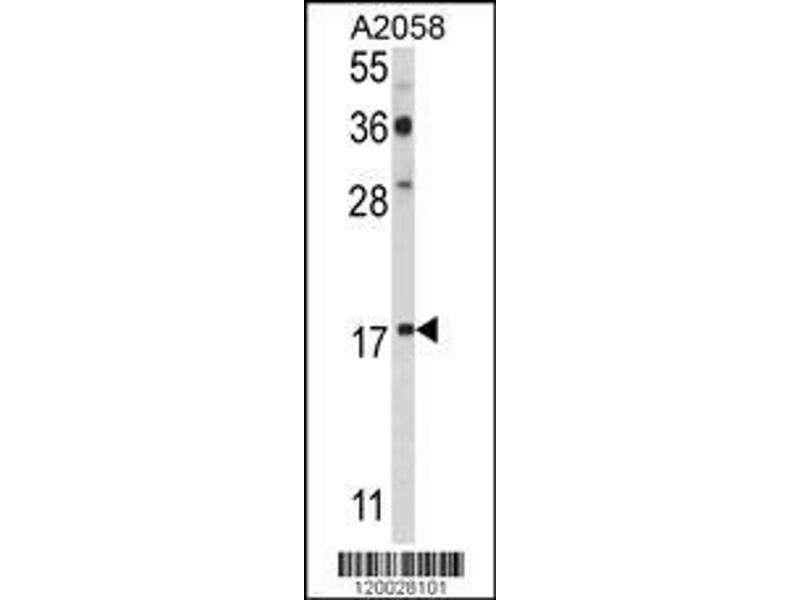 Western Blotting (WB) image for anti-P53 and DNA-Damage Regulated 1 (PDRG1) (AA 12-41), (N-Term) antibody (ABIN390943)