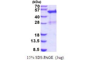 Image no. 1 for Sorting Nexin 5 (SNX5) (AA 1-404) protein (His tag) (ABIN5854205)