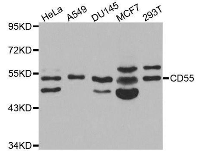 Western Blotting (WB) image for anti-Complement Decay-Accelerating Factor (CD55) antibody (ABIN3021785)